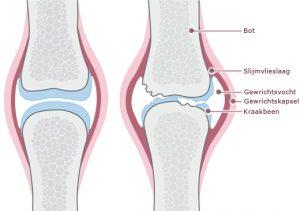kapsel van kniegewricht