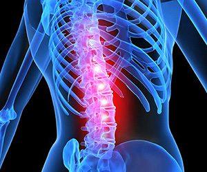 Fysiotherapie volgens de McKenzie methode